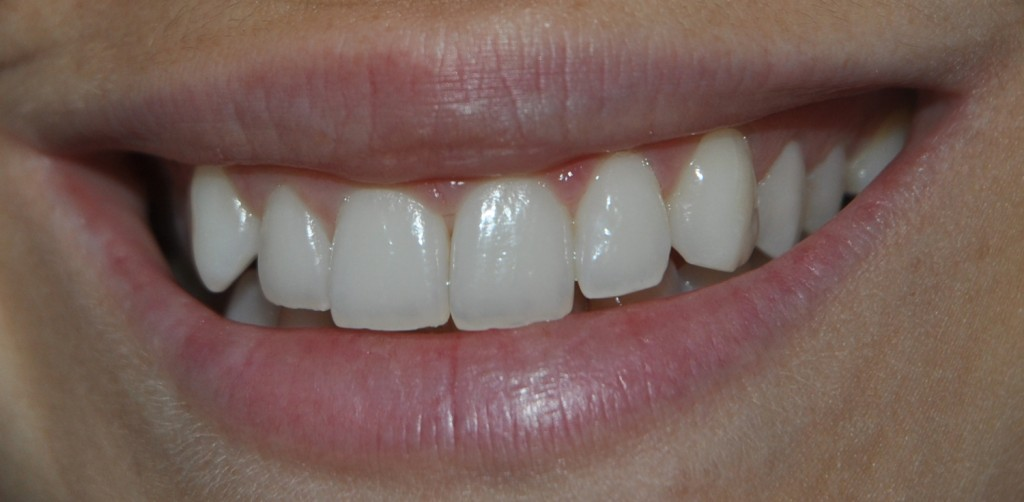 pearldent-bright-white4